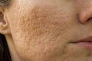 Remove face pore