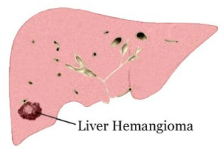 Benign Tumors of The Liver