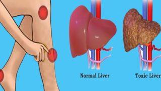 Σημάδια που δείχνουν ότι το συκώτι σας είναι γεμάτο τοξίνες και σας κάνει να βάζετε κιλά