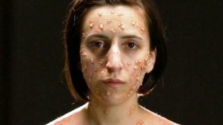 Πώς μοιάζουν 6 θανατηφόρες ασθένειες στο σώμα μας (Video)