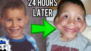 Ιστορίες από 15 Παιδιά που επέζησαν από το αδύνατο (Βίντεο)