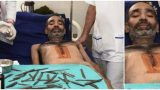 """Έβαλαν """"Φακίρη"""" στο Χειρουργικό Τραπέζι για να τον αφαιρέσουν 40 μαχαίρια"""