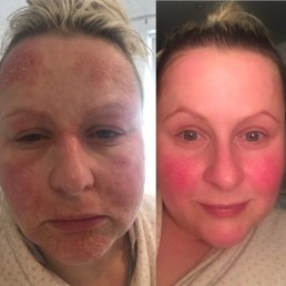 allergic reaction to MI before and after