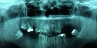 radiografia endodontia