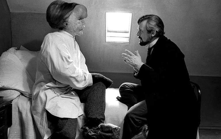 The elephant man recensione film lynch