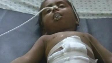 Dit Afghaans jongetje van drie heeft in 2006 een aanslag van de NAVO overleefd. Deze foto is één van velen op de website http://www.rawa.org/index.php (niet voor gevoelige personen). The Revolutionary Association of Women of Afhanistan (RAWA) klaagt al jaren de misdaden van de NAVO aan en krijgt daar nauwelijks gehoor voor in onze media