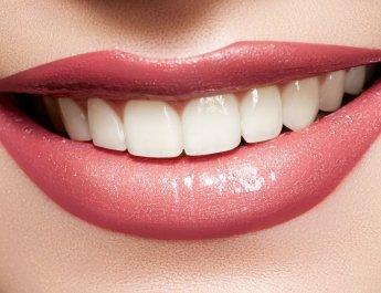 White-Smile-lips
