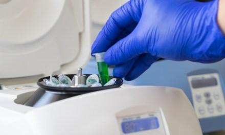 Centrífuga sorológica para laboratório: O que é e como funciona?