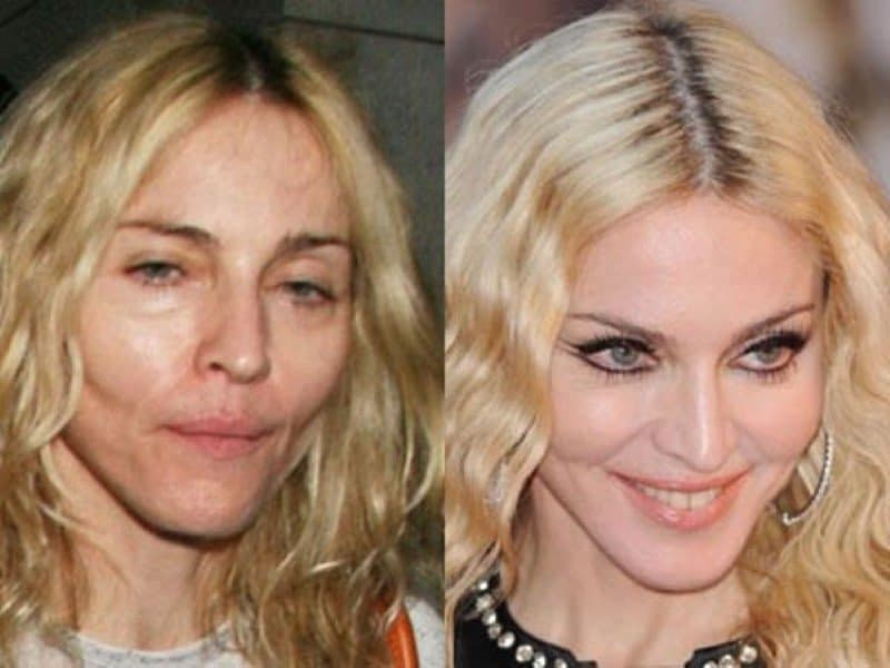 Bridget Naso Plastic Surgery