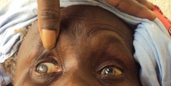 Togo : l'Organisation Ouest Africaine de la Santé (OOAS) fait don de matériels au CHU SO