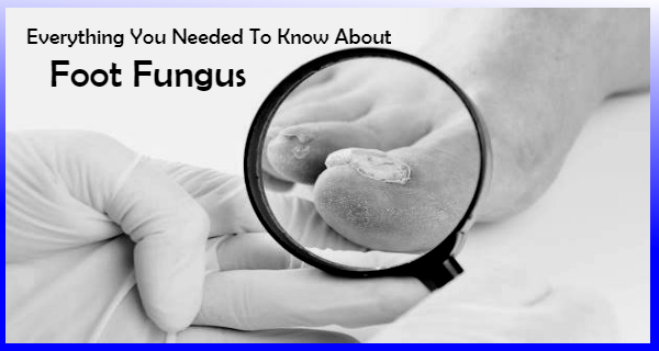 Everything You Needed To Know About Foot Fungus