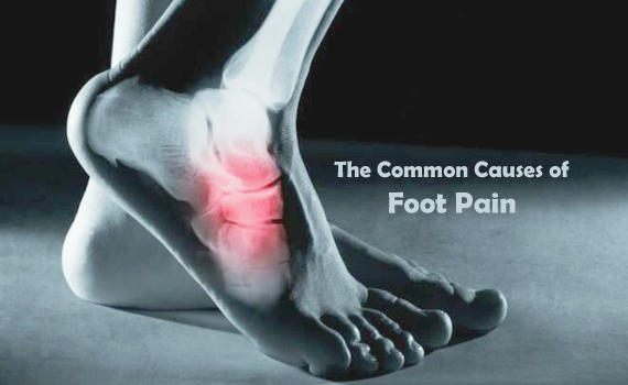 The Common Causes of Foot Pain