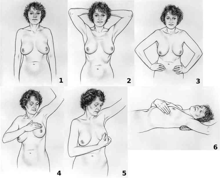 detect breast cancer self exam