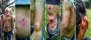Colombia- represión-tándem-azucarero-loquesomos