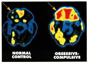 PET scan shows hyperactivity in OCD but Obsessive Compulsive Disorder Treatments change the game.