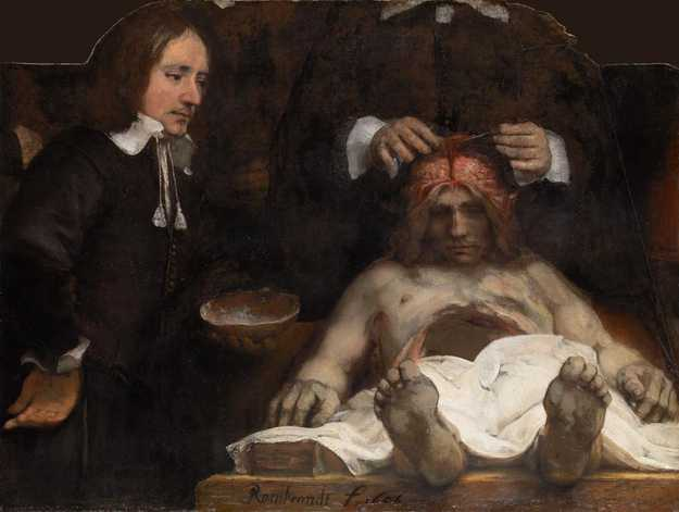 Rembrandt - Fragment van de Anatomische les van Dr. Deyman - 100×134cm, Olieverf op canvas, 1656, Amsterdam's Historisch Museum