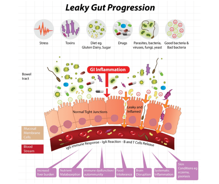 diagram showing leaky gut progression