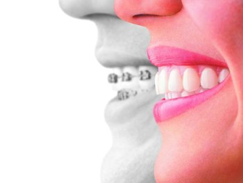 #InvisalignTalk on Straight Teeth - Invisalign compared to braces