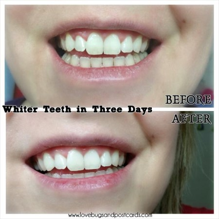 How to get whiter teeth in 3 days