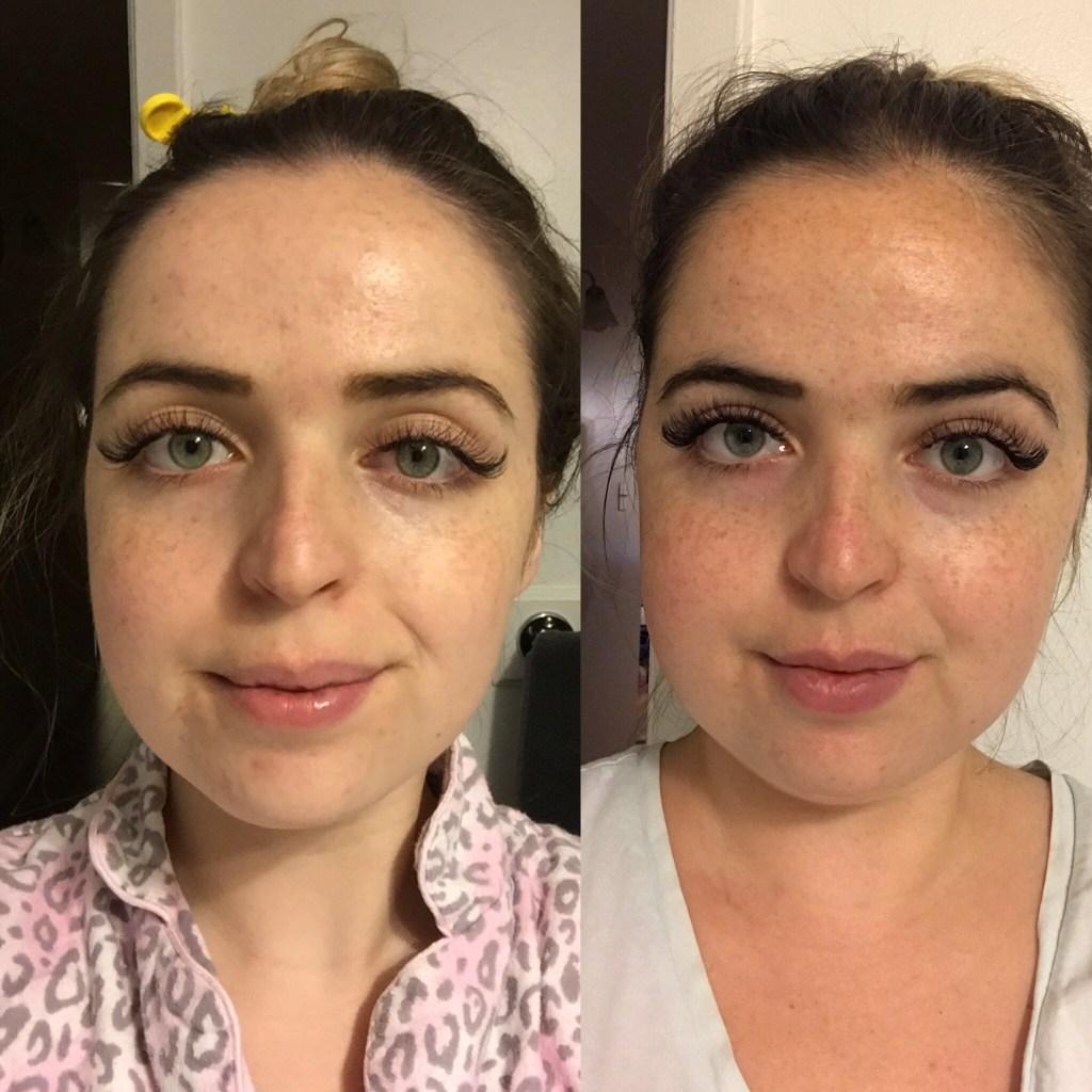 benzac ac 5 moderate acne gel 50 g