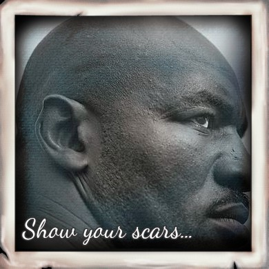 Show Your Scars - Confronting the Beauty Myth