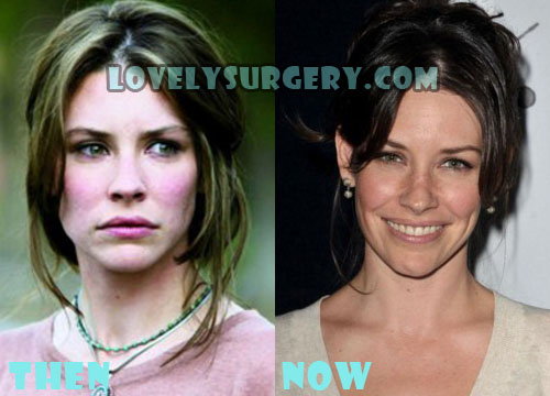 Evangeline Lilly Plastic Surgery Botox