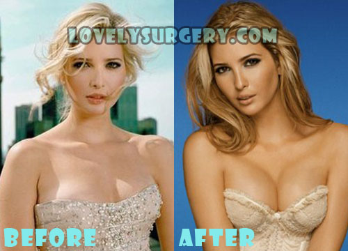 Ivanka Trump Plastic Surgery Boob Job