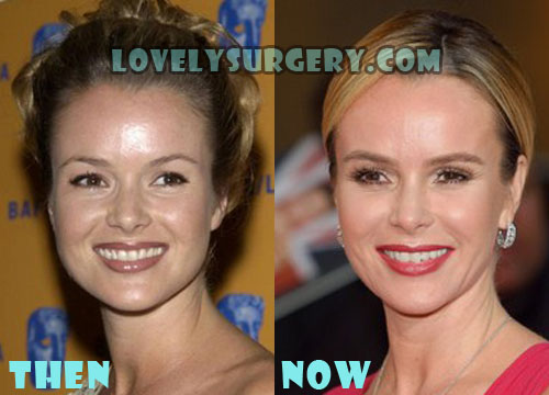 Celebrity facelift game