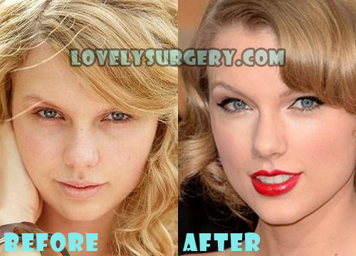 Taylor Swift Plastic Surgery Nose Job