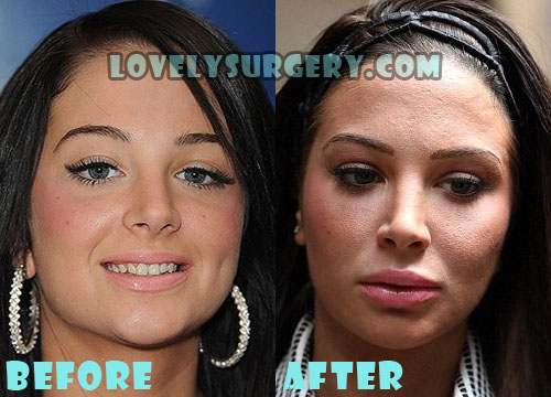 Tulisa Contostavlos Plastic Surgery