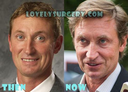 Wayne Gretzky Plastic Surgery Botox, Facelift