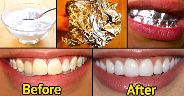 Image result for Use of foil and toothpaste