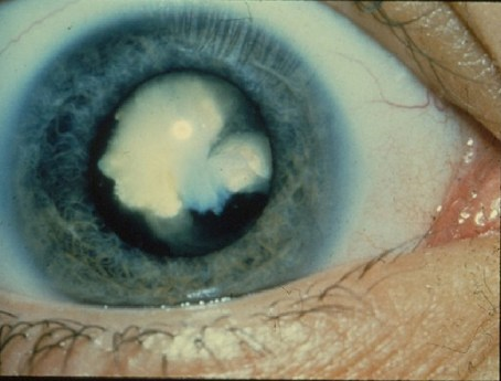 A diabetic cataract (Cataract, used under CC 2.0)