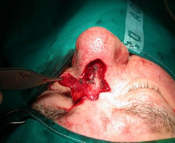 Risultati immagini per http://www.lucaguarda.it/casistica-operatoria-e-interessi-professionali/terapia-dei-tumori-della-pelle-e-delle-lesioni-cutanee/