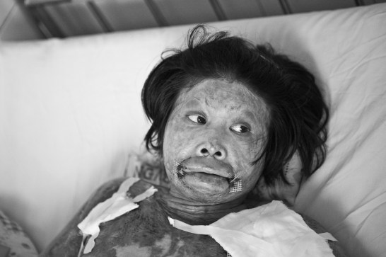 This woman, once very beautiful, is badly burn in a kitchen accident. Her husband sold his motorcycle to pay for the hospital expenses. East Meets West helped the family repurchasing the motorcycle and paying for the cost of surgery. Danang. Vietnam. 2007