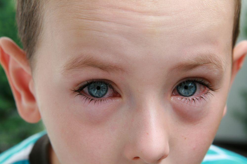 Ojos rojos y leganas en adultos