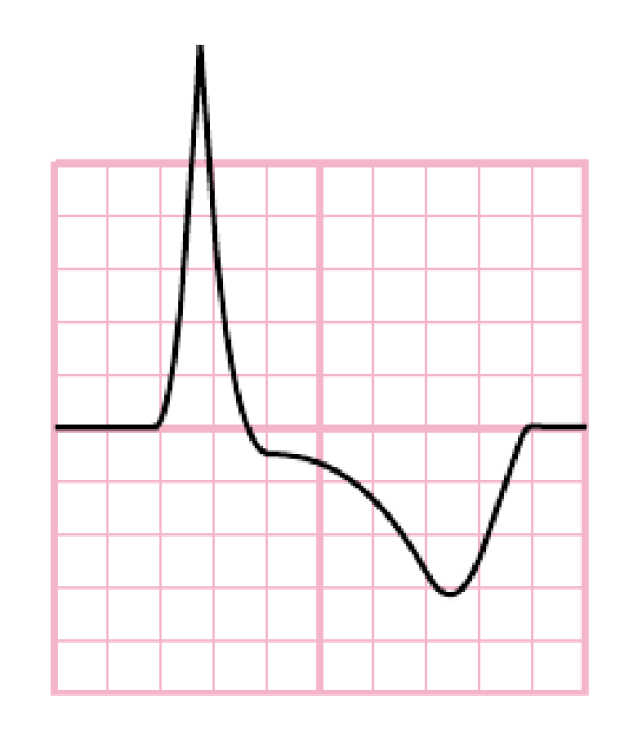 Secondary repolarization abnormality