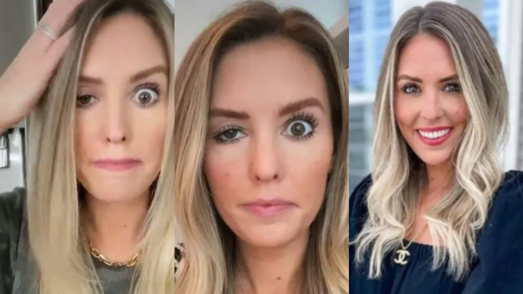 Influencer posts video of her Drooping Eyelid after Surgery gone Wrong