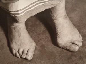 MotherTeresa Feet