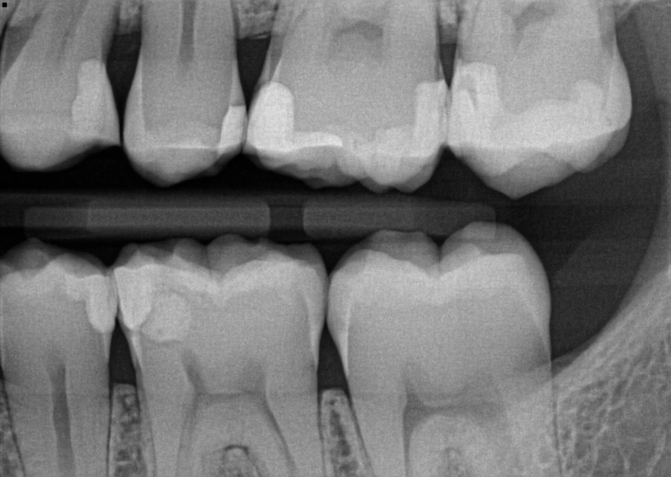 Image result for pictures of an x ray of teeth