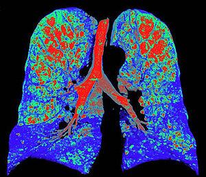 What is pulmonary emphysema