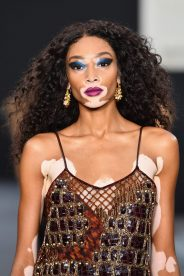 PARIS, FRANCE - OCTOBER 01: Winnie Harlow walks the runway during Le Defile L'Oreal Paris as part of Paris Fashion Week Womenswear Spring/Summer 2018 at Avenue Des Champs Elysees on October 1, 2017 in Paris, France. (Photo by Pascal Le Segretain/Getty Images for L'Oreal Paris)