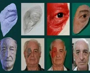 Brasil concebe uma prótese facial a partir de um celular 1