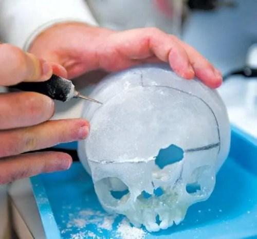 Impressão 3D de biomodelos salvando vidas humanas - Planejamento cirurgico