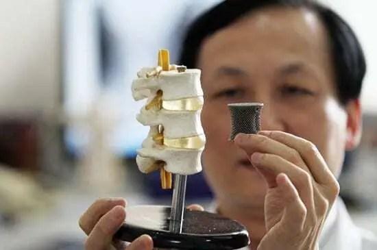 Médico segurando molde de vértebras da coluna com um pino impresso em impressora 3D ao lado, dando ideia de prótese.