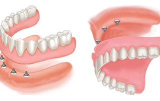 Lower and Upper Implant Retained Denture