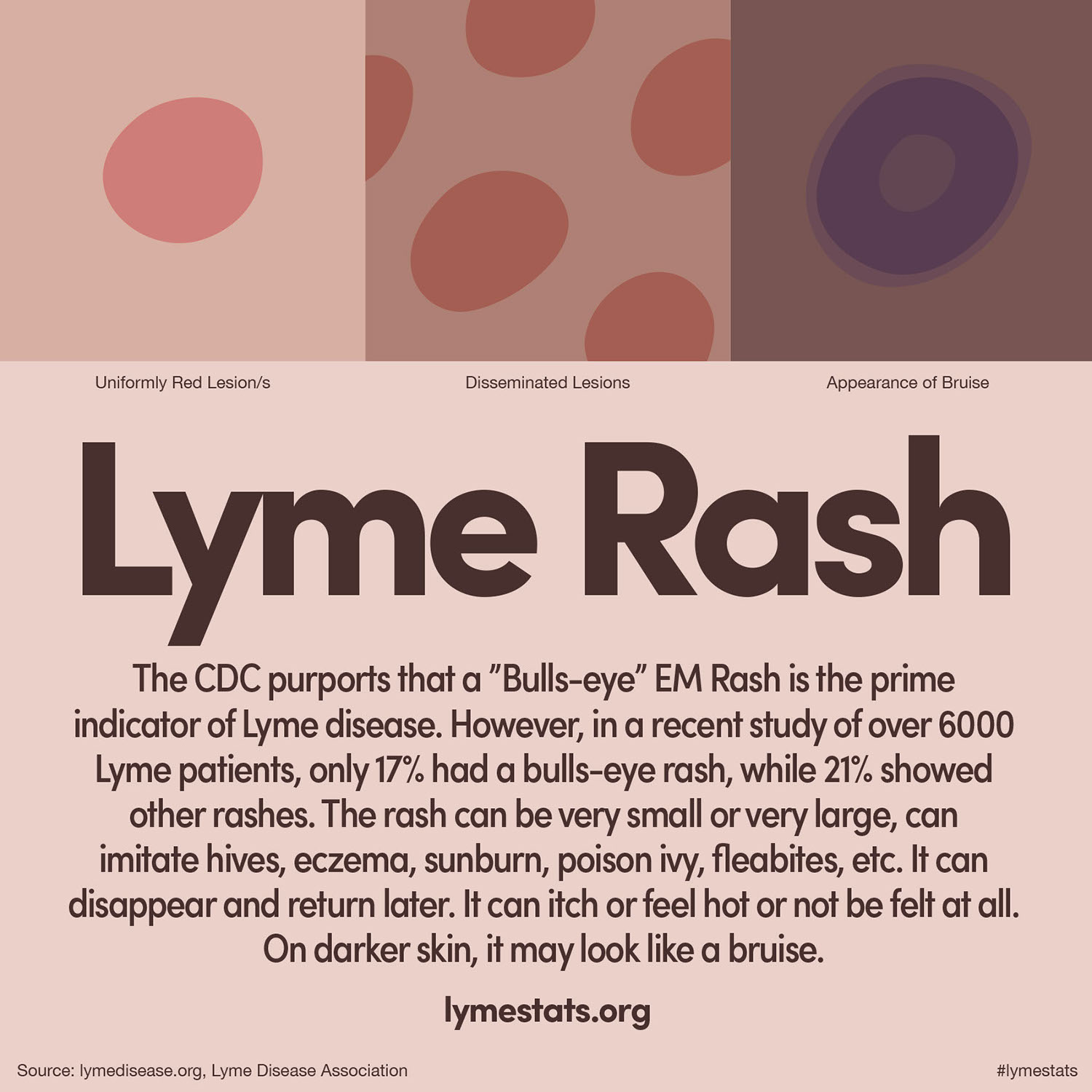 Image result for lyme stats