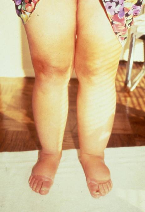 Differences Between Lipedema And Lymphedema Lymphedema Blog