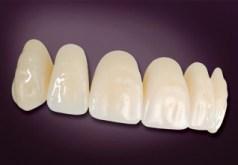 Heraeus Artic Teeth