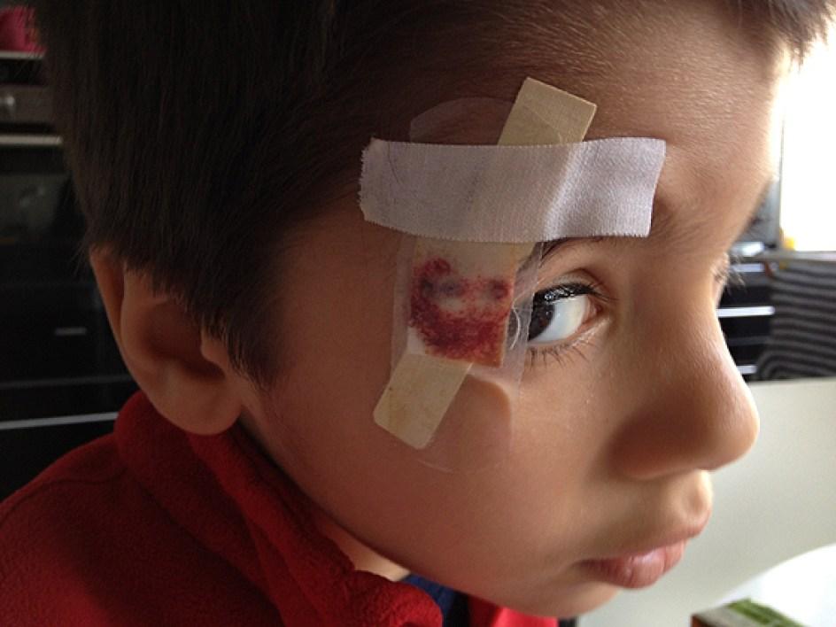 A ferida ficou bem feia, ali ao lado do olho direito, vamos ver se deixa cicatriz...